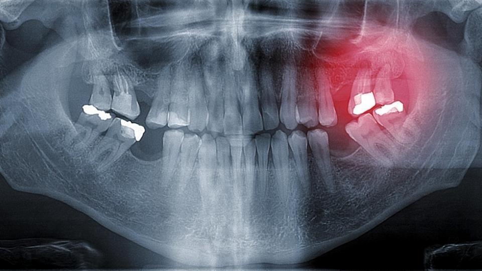 dental-amalgam-fillings