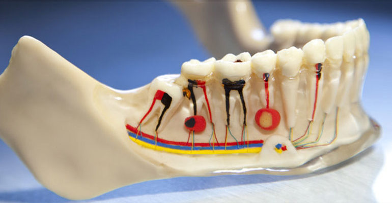 Root Canal Removal