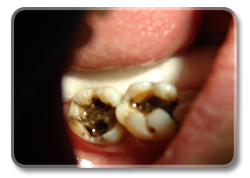 Fungus and bacteria under mercury fillings (2009).