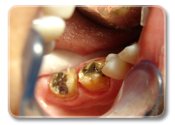 Same teeth after OZONE treatment.