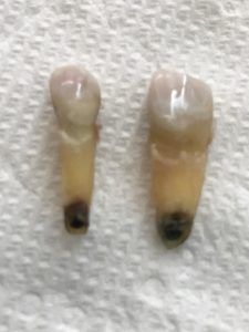 Root Canal Treated Molar